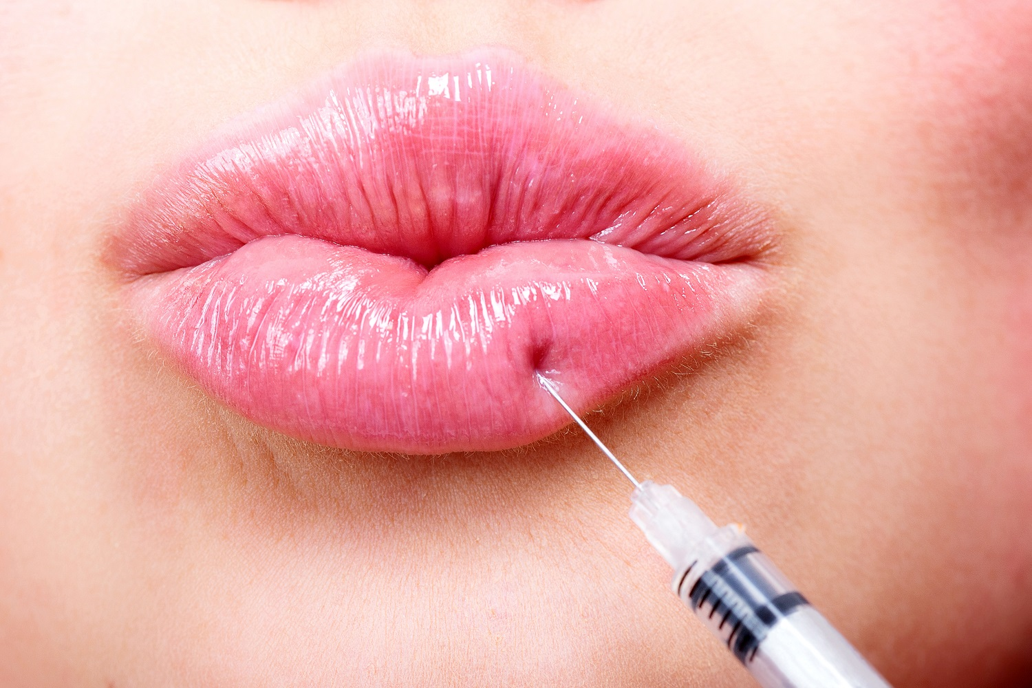 injectables cupid's bow